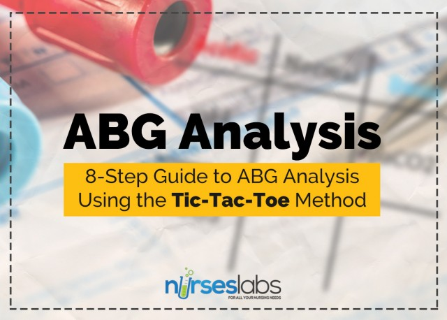 ABG-8StepGuide-Featured-640x458